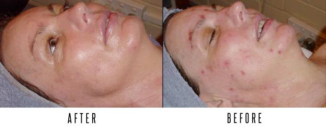Pores & Breakouts - Herbal A-Peel