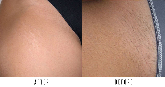Before After Gallery Toronto Skin Laser
